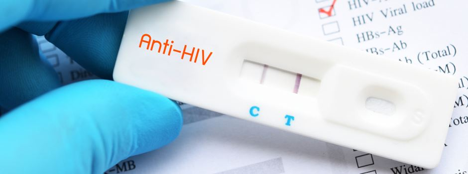 ratiopharm hiv test