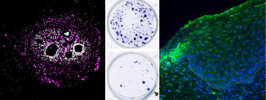 Mainzer Forscher entdecken körpereigenen Tumor-Blocker